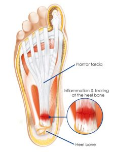 heel pain pic 1