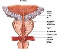 top 5 physiotherapy tips to consider when preparing for prostatectomy pic 1